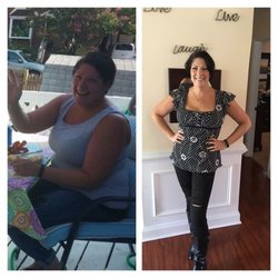 weight loss Baltimore